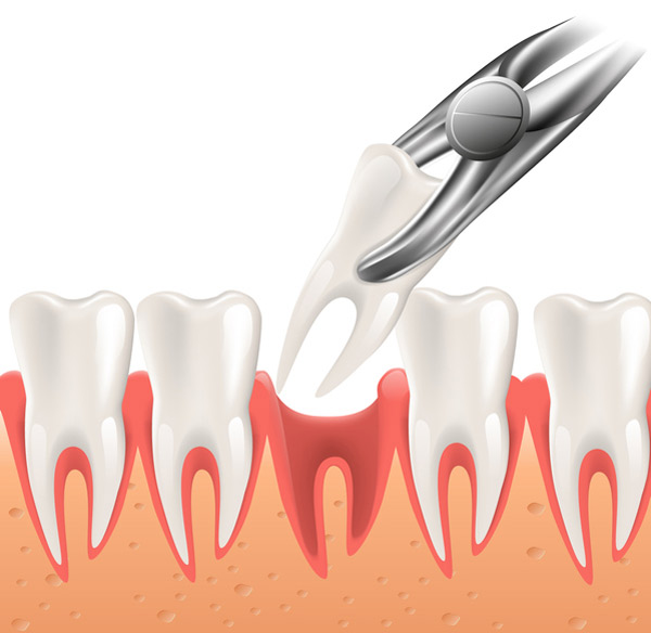Diagram of a tooth being extracted